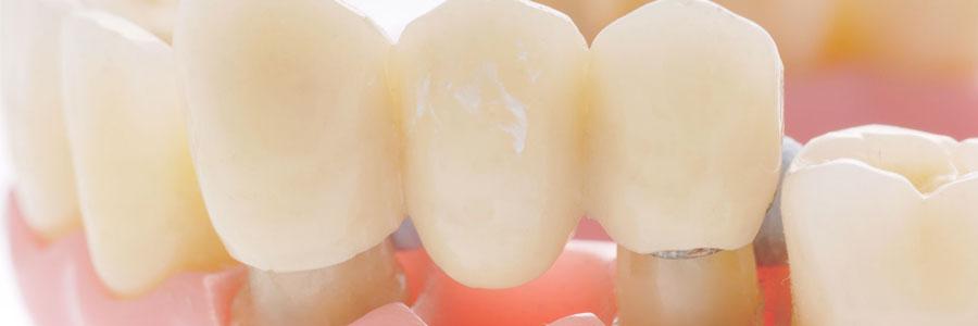 vancouver dental bridges